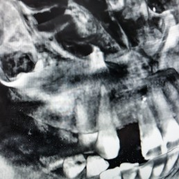Zahnarzt in Königs Wusterhausen - 3D-Röntgen-Röntgenbild