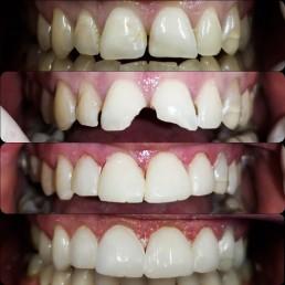 Zahnarzt in Königs Wusterhausen - Füllung-Zähne-Vergleich-vorher-nachher