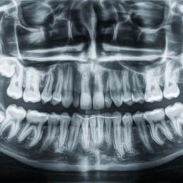 Zahnarzt in Königs Wusterhausen - Weisheitszähne-Röntgenbild