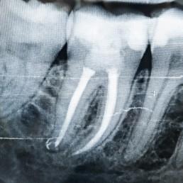 Zahnarzt in Königs Wusterhausen - Wurzelkanalbehandlung-Röntgenbild